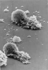 Worm sperm protein turns sperm on, then keeps rival spermoff