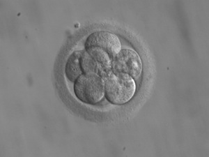 An 8 cell embryo, bravely defying its mother's hostile immune system. Image via Wikimedia.